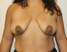 Breast Lift Before Photo by Kyle Shaddix, MD; Pensacola, FL - Case 37464