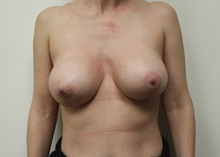 Breast Lift After Photo by Kyle Shaddix, MD; Pensacola, FL - Case 37465