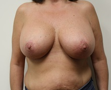 Breast Lift After Photo by Kyle Shaddix, MD; Pensacola, FL - Case 37477