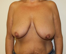 Breast Lift Before Photo by Kyle Shaddix, MD; Pensacola, FL - Case 37477
