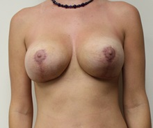 Breast Lift After Photo by Kyle Shaddix, MD; Pensacola, FL - Case 37480