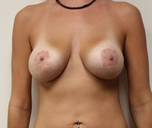 Breast Lift Before Photo by Kyle Shaddix, MD; Pensacola, FL - Case 37480