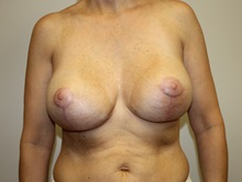 Breast Lift After Photo by Kyle Shaddix, MD; Pensacola, FL - Case 37488