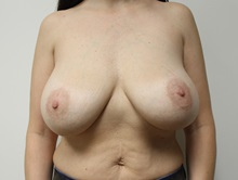 Breast Lift Before Photo by Kyle Shaddix, MD; Pensacola, FL - Case 37488
