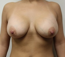 Breast Augmentation After Photo by Kyle Shaddix, MD; Pensacola, FL - Case 37567