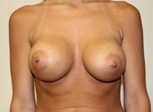 Breast Augmentation After Photo by Kyle Shaddix, MD; Pensacola, FL - Case 37580