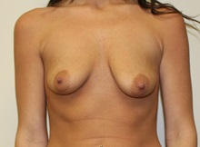 Breast Augmentation Before Photo by Kyle Shaddix, MD; Pensacola, FL - Case 37580