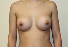 Breast Augmentation After Photo by Kyle Shaddix, MD; Pensacola, FL - Case 37583