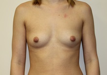 Breast Augmentation Before Photo by Kyle Shaddix, MD; Pensacola, FL - Case 37583