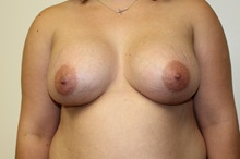 Breast Augmentation After Photo by Kyle Shaddix, MD; Pensacola, FL - Case 37624
