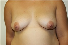 Breast Augmentation Before Photo by Kyle Shaddix, MD; Pensacola, FL - Case 37624