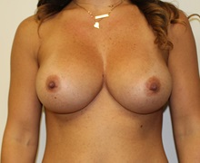 Breast Augmentation After Photo by Kyle Shaddix, MD; Pensacola, FL - Case 37636