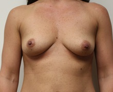 Breast Augmentation Before Photo by Kyle Shaddix, MD; Pensacola, FL - Case 37636