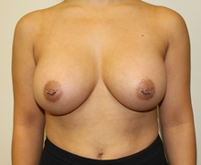 Breast Augmentation After Photo by Kyle Shaddix, MD; Pensacola, FL - Case 37639