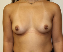 Breast Augmentation Before Photo by Kyle Shaddix, MD; Pensacola, FL - Case 37639