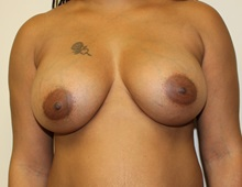 Breast Augmentation After Photo by Kyle Shaddix, MD; Pensacola, FL - Case 37670