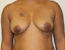 Breast Augmentation Before Photo by Kyle Shaddix, MD; Pensacola, FL - Case 37670