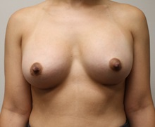 Breast Augmentation After Photo by Kyle Shaddix, MD; Pensacola, FL - Case 37674