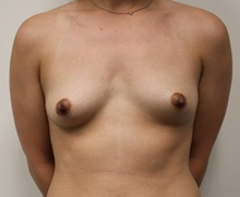 Breast Augmentation Before Photo by Kyle Shaddix, MD; Pensacola, FL - Case 37674