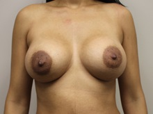 Breast Augmentation After Photo by Kyle Shaddix, MD; Pensacola, FL - Case 37677