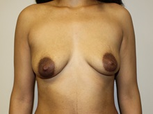 Breast Augmentation Before Photo by Kyle Shaddix, MD; Pensacola, FL - Case 37677