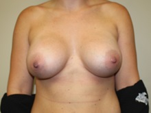 Breast Augmentation After Photo by Kyle Shaddix, MD; Pensacola, FL - Case 37679