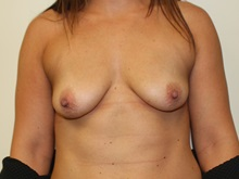 Breast Augmentation Before Photo by Kyle Shaddix, MD; Pensacola, FL - Case 37679