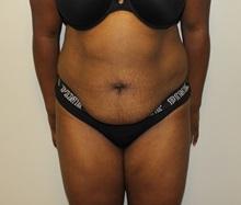 Tummy Tuck Before Photo by Kyle Shaddix, MD; Pensacola, FL - Case 38021