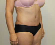Tummy Tuck After Photo by Kyle Shaddix, MD; Pensacola, FL - Case 38195