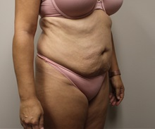 Tummy Tuck Before Photo by Kyle Shaddix, MD; Pensacola, FL - Case 38195