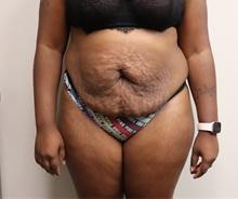 Tummy Tuck Before Photo by Kyle Shaddix, MD; Pensacola, FL - Case 42887