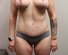 Tummy Tuck After Photo by Kyle Shaddix, MD; Pensacola, FL - Case 42893