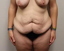 Tummy Tuck Before Photo by Kyle Shaddix, MD; Pensacola, FL - Case 42893