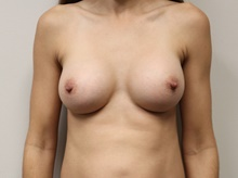 Breast Augmentation After Photo by Kyle Shaddix, MD; Pensacola, FL - Case 42930
