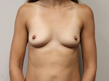 Breast Augmentation Before Photo by Kyle Shaddix, MD; Pensacola, FL - Case 42930