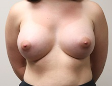 Breast Augmentation After Photo by Kyle Shaddix, MD; Pensacola, FL - Case 42937