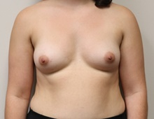 Breast Augmentation Before Photo by Kyle Shaddix, MD; Pensacola, FL - Case 42937