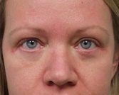 Eyelid Surgery After Photo by Kyle Shaddix, MD; Pensacola, FL - Case 42951