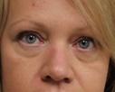 Eyelid Surgery Before Photo by Kyle Shaddix, MD; Pensacola, FL - Case 42951