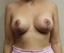 Breast Lift After Photo by Kyle Shaddix, MD; Pensacola, FL - Case 42953