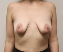 Breast Lift Before Photo by Kyle Shaddix, MD; Pensacola, FL - Case 42953