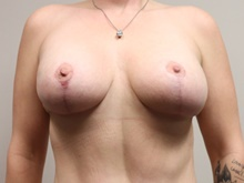 Breast Lift After Photo by Kyle Shaddix, MD; Pensacola, FL - Case 42954