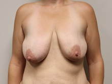 Breast Lift Before Photo by Kyle Shaddix, MD; Pensacola, FL - Case 42954