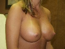 Breast Augmentation After Photo by Richard Levin, MD; Lancaster, PA - Case 4149