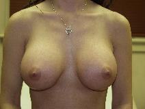Breast Augmentation After Photo by Richard Levin, MD; Lancaster, PA - Case 4238