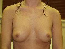 Breast Augmentation Before Photo by Richard Levin, MD; Lancaster, PA - Case 4238
