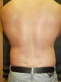 Liposuction After Photo by Richard Levin, MD; Lancaster, PA - Case 4278