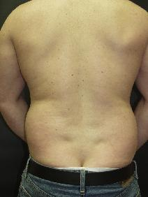 Liposuction Before Photo by Richard Levin, MD; Lancaster, PA - Case 4278