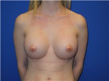 Breast Augmentation After Photo by Shahram Salemy, MD  FACS; Seattle, WA - Case 33120