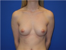 Breast Augmentation Before Photo by Shahram Salemy, MD  FACS; Seattle, WA - Case 33120